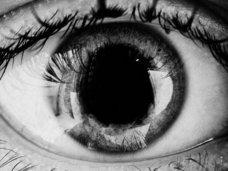 """【閲覧注意】眼球から""""毛が生えてくる""""奇病「角膜輪部皮様嚢腫」が怖すぎる! 驚愕の発症原因とは!?"""