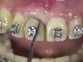 【閲覧注意】精神的にキツイ映像発見! 最新抜歯技術「ベネックス抜歯システム」がヤバイ・痛い・グロい!