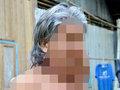 """【閲覧注意】45年ぶりに姿を現した「バブルマン」 ― 全身を覆う無数のイボは""""前世の呪い""""の声=タイ"""