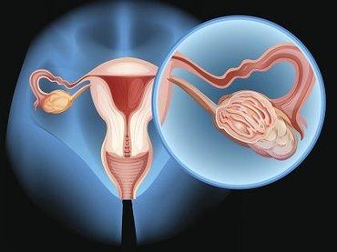 【世界初】9歳で卵巣摘出→冷凍保存→24歳で再移植&出産! 不妊治療の最前線がヤバい