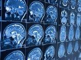【ガチ】20年以上ホルマリン漬けだった脳が蘇る! 脳死と意識の定義完全に覆るか(カナダ・米大学研究)