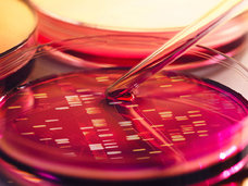 【がん細胞を濃縮して遺伝子解析〜患者のストレスが大きい「生体診断」を安全で迅速な「液体診断」へ