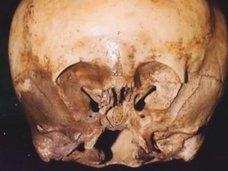 """「スターチャイルド頭蓋骨」の謎とは? DNA鑑定で""""非人間""""、宇宙人とのハイブリッドか?"""