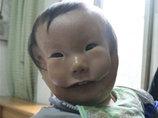 """【閲覧注意】顔の上にもう1つ顔 ― """"仮面少年""""と呼ばれる少年の誕生に母は…!?"""