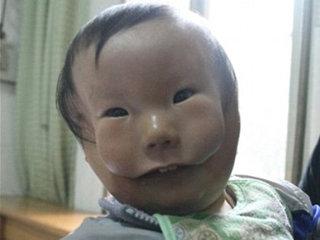 """【【閲覧注意】顔の上にもう1つ顔 ― """"仮面少年""""と呼ばれる少年の誕生に母は…!?"""