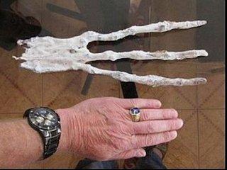 """【【衝撃】エイリアンの巨大な""""手""""がレントゲンで撮影される! 専門家「地球の生物ではない」=ペルー"""
