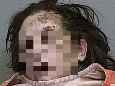 人間、やめますか? ― ハードドラッグにハマった女性たちの顔面激劣化(モンスター化)がヤバい!