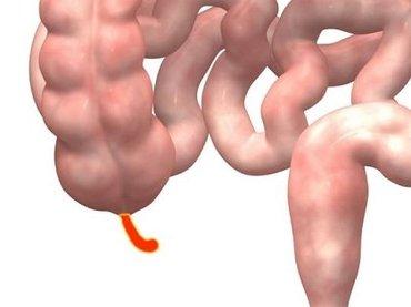 実は不要ではなかった「盲腸」! 進化の過程で淘汰されていないのは、実は善玉菌の貯蔵庫だから?