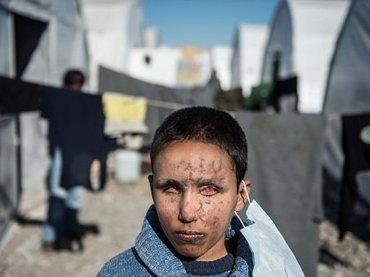 """空爆で両目が完全に潰れたシリア少年! カメラに向けられた""""瞳なき眼差し""""に心を揺さぶられる!"""