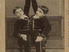 巨人症、アルビノ、結合双生児… 奇形を見世物にした19世紀のフリークショー出演者たち19人大集合!