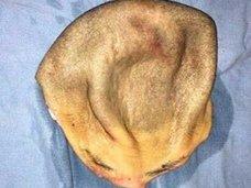 頭皮ごとずるズル剥けになった女性