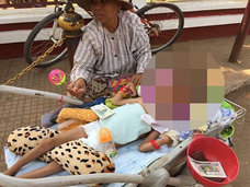 【閲覧注意・奇病】頭蓋骨がパックリ割れたまま生まれた少年! 亀裂(深さ10cm)に手を入れてみると中には…!?
