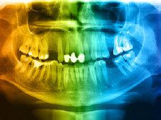 【歯周病のあなたはすでに糖尿病前症・糖尿病になっている可能性が高い!