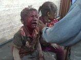 【閲覧注意】正義とは何か!? 「イスラム国」視点で見る米軍の空爆 ― 子どもの顔面は焦げ、血と粉塵まみれに…=イラク