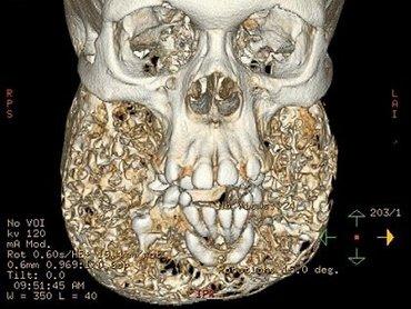 【奇病】顎が超巨大化、現代美術彫刻になった女性 ― 謎の難病「ケルビズム症」とともに生きて