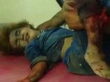 【閲覧注意】有志連合空爆で幼子や少女に残酷すぎる被害…頭部もパックリ、一般市民の苦しみを見よ!=シリア(IS撮影)