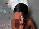 """【閲覧注意】腫瘍の中に埋もれた""""目玉""""がギョロリ…!どこまでも垂れ下がる右目をもつ男=フィリピン"""