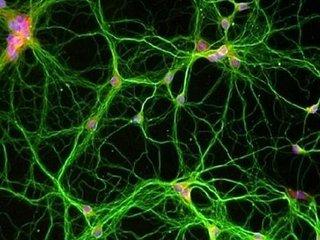 """【ガチ科学】消したいトラウマ記憶を""""切り抜く""""技術が開発される! 一生思い出すことは不可能、洗脳に悪用される可能性も=アメリカ"""