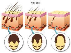 AGA治療はコスパが重要~薄毛の悩みを抱える人は1200万人