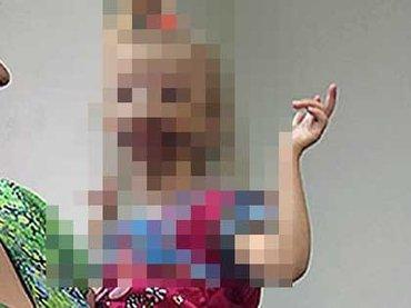 【閲覧注意・奇形】唇がくり抜かれた少女ダリア ー 口の中が剥き出しで生まれて =ロシア