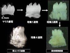 もうすぐインプラント終焉、失った歯を培養して完全再生できるようになる! 大変革期に突入した歯科医療の最前線を徹底解説