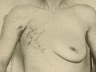 【閲覧注意・乳がん】全摘出した乳房についた「超巨大腫瘍」がヤバすぎる! 黒く波打ち、胸を突き破るほど…