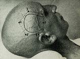 【閲覧注意】100年前の脳外科手術が恐すぎる!! 麻酔なしで頭蓋骨にドリル突き刺し、穴から針を挿入して…!