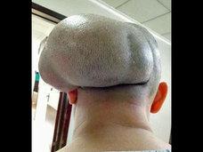 まるで漬物石!? 30年間放置した頭部のこぶが巨大化、耳を押しつぶすほどのサイズに