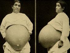 """【閲覧注意・ガン】「最初は良性腫瘍だったのに…」7年間、子宮筋腫を放置した衝撃結果""""ギネス超え""""32kgの超・巨大グロ腫瘍に成長!=グアテマラ"""