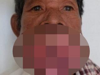 【閲覧注意】30年間一度も歯医者に行かないとこうなる!? 歯肉が巨大化、完全に口が塞がりヤツメウナギになった男=カンボジア