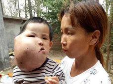 安楽死を願う親も……巨大腫瘍に苦しむ中国の子どもたち「頼みの綱は募金」