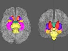 """【やはり】うつ病は脳の病気であることが科学的に判明か!? 史上最大級のリサーチで脳内の""""質の低下""""が発見される!"""