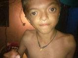 """【閲覧注意】水掻きに""""吸収合併""""された手足の指! 頭蓋骨まで変形… 奇病「アペール症候群」の少年に驚愕=インド"""