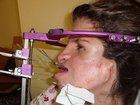"""トリーチャー・コリンズ症候群の""""顔面崩壊女"""" ― いじめ・差別を乗り越え56回の手術で回復の兆し、その全記録"""