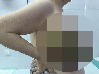 """【閲覧注意】""""史上最悪の乳がん""""と謳われた腫瘍 — 胸に咲いた世界一残酷な花"""