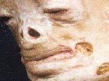 """人間がヴァンパイアになりゆく病""""ポルフィリン症""""の研究 ポー博士「彼らが生き血を飲む原因は…」"""