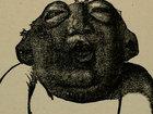 """【閲覧注意】重度の「無脳症」を発症した赤ん坊の悲劇的すぎる姿! 頭蓋骨と頭皮も欠損、頭の""""中身""""が丸見え状態で何かを訴えている!?"""
