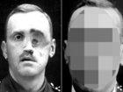【閲覧注意・整形手術】100年前のビフォーアフター6例が衝撃的すぎる! 天才外科医ハロルド・ギリーズが顔面崩壊兵士に施した驚異の整形手術!