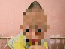 """""""3世代""""にわたり奇形児が生まれ続けるベトナム戦争「枯葉剤」の悲劇写真10選! のっぺらぼう、顔面崩壊… 米国の残酷な戦争犯罪とは?"""