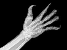 """【衝撃画像】スマホの影響で人間の手が""""超絶キモイ形""""に変化していくことが判明! 吸盤、指の湾曲…衝撃の進化!"""