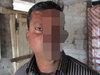 """【閲覧注意】トラに顔面を引き裂かれた男の""""23年後の姿""""がヤバすぎる! 「もう隠れて生活したくない」ついに素顔公開、手術を決意するも…=バングラデシュ"""