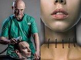 【世界初】人間の頭部移植に成功か!? 中国人の首をすげ替え… カナベーロ博士が衝撃会見「生きた犬も成功」「次は脳移植」