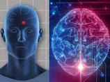 【朗報】うつ病患者の頭蓋骨に穴を開けて悲しみや痛みをとる治療法「DBS」が登場!「電極」を埋め、3年で電池交換!