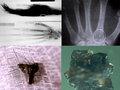 宇宙人が人間の身体に異物を埋め込んだ数々の証拠! すべて磁気を帯びており…恐るべきエイリアン・インプラントの実態!