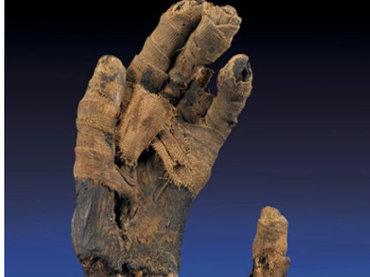 ムッソリーニの脳、ナポレオンのペニス、ガリレオの指と歯…! オークションで取引された驚くべき人体のパーツ5選!