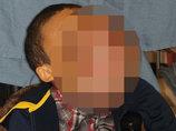 """【閲覧注意】10ポンドの巨大腫瘍に""""顔を乗っ取られた""""14歳少年! 多骨性線維性骨異形成症で苦しむ少年、今月手術実施へ"""