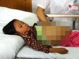 【閲覧注意・近親相姦】女児が40歳養父の子どもを妊娠、躰のバランスが完全崩壊! 中国全土が絶句するレベル!
