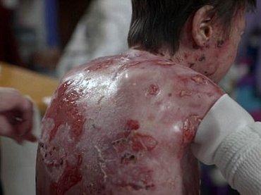 """【奇病】全身の皮膚が""""ズルむけ""""る「バタフライボーイ」の想像を絶する激痛! ハイパー治療法「幹細胞遺伝子」で回復なるか"""