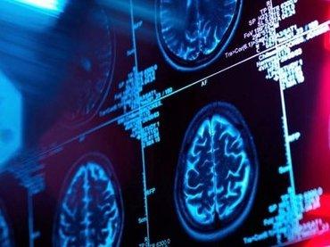カップルの愛が真実かどうかわかる医療テスト登場、10年以内に普及へ! 確度97%、MRIを使った「真実の愛診断」がヤバすぎる