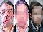"""【閲覧注意】""""3つ目の顔""""を手に入れた43歳の男が50歳以上若返る! 「新しい自分に慣れてきた」前向きな生き方に医師驚愕=仏"""
